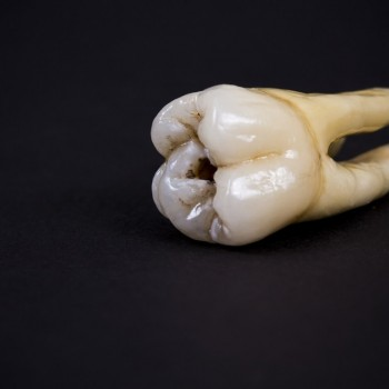 A tooth that fell out due to decay